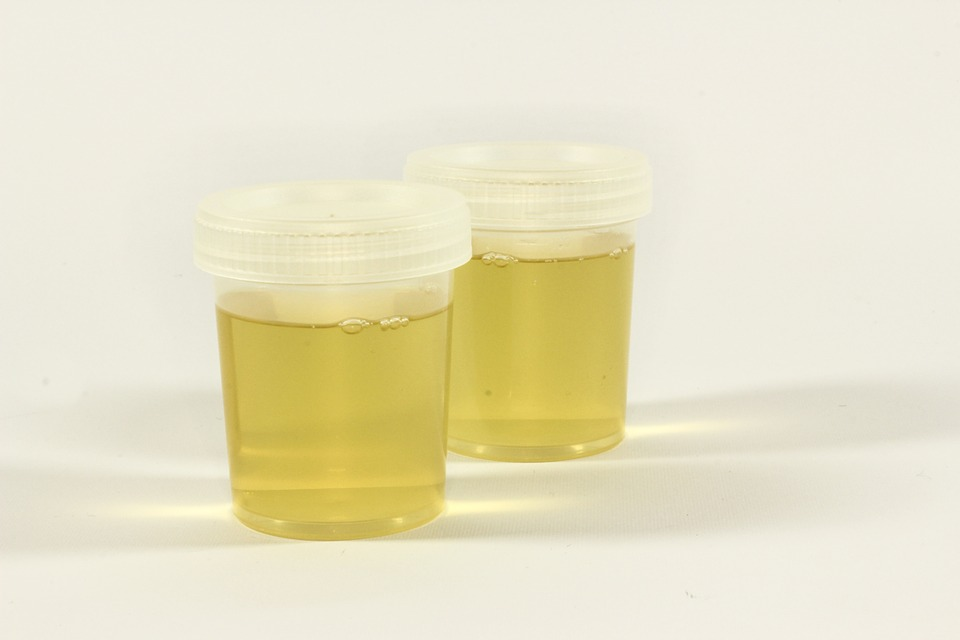 test urine in container